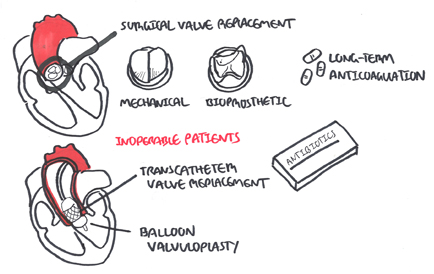 Management of Aortic Stenosis depends on operable and inoperable patients. For symptomatic oeprable patients, valve replacement is advised. For young patients, mechanical valve is suggested because of durability.