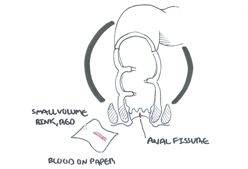 Anal Fissure Overview